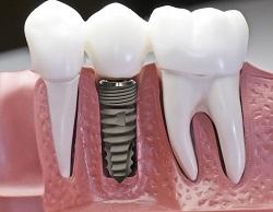 Bí quyết chăm sóc răng đúng cách sau khi cấy ghép răng implant