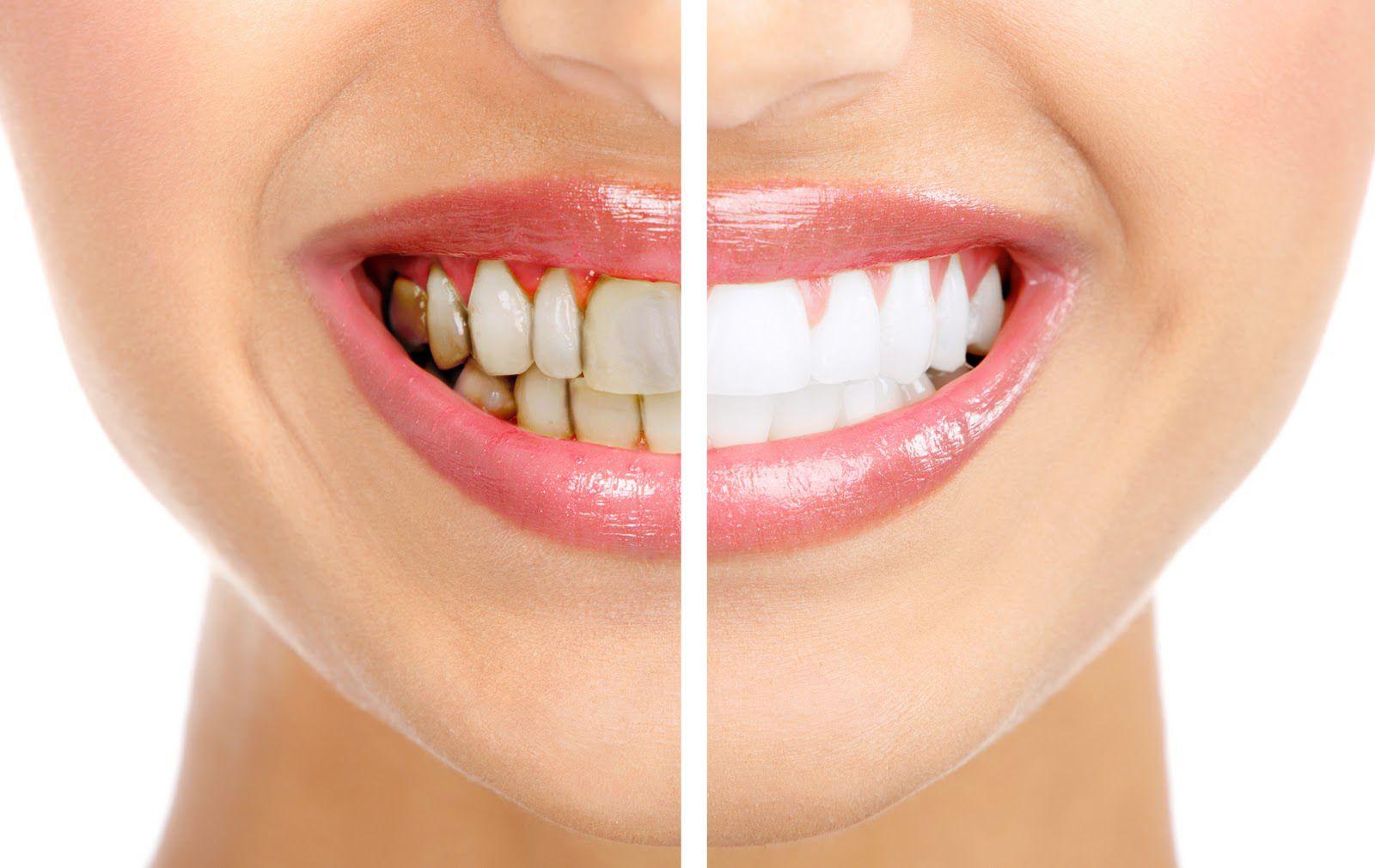 Bọc răng sứ đột phá trong lĩnh vực thẩm mỹ răng