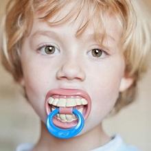 Các thói quen có thể gây lệch lạc răng hàm ở trẻ