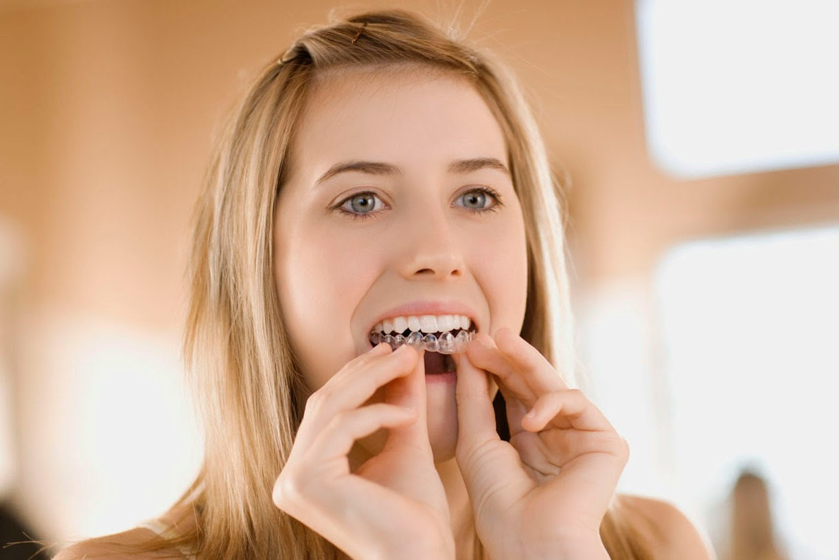 Cách chăm sóc răng miệng sau khi niềng răng