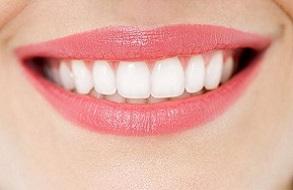 Chi phí hàn chân răng có đắt không ?