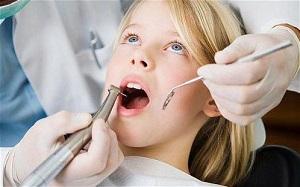 Có nên lấy cao răng cho trẻ em không
