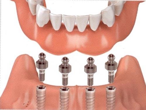 Có nên thực hiện phương pháp trồng răng implant