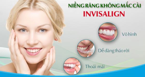 Đặc điểm và cách niềng răng hô hàm dưới