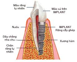 Độ tuổi nào nên và không nên cấy ghép implant?