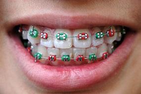 Giái pháp niềng răng hiệu quả tối ưu với mắc cài 3M UGSL