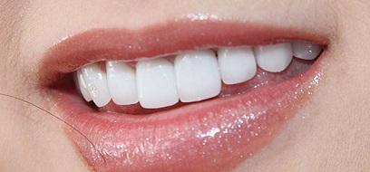 Khi bọc răng sứ cần lưu ý những điều gì?