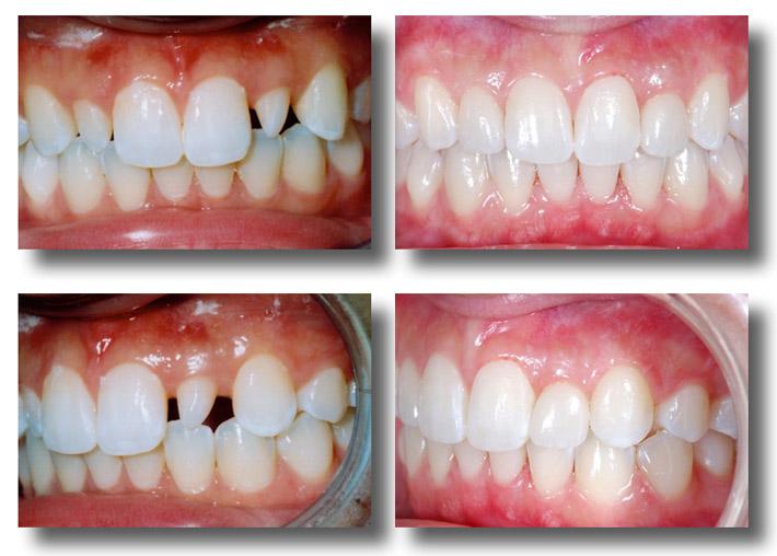 Khi nào có thể bọc sứ răng thưa?