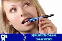 Khuyết cổ răng - Nguyên nhân và cách phòng ngừa