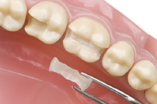 Kỹ thuật trám răng Inlay/Onlay phục hồi răng hư tổn