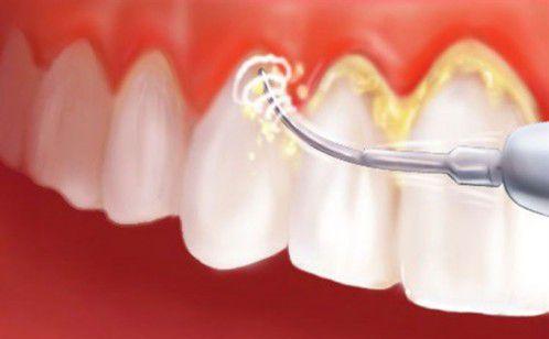 Lấy cao răng bằng máy siêu âm phương pháp thẩm mỹ răng mới