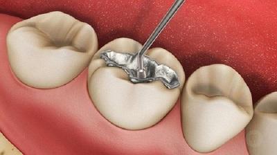 Những điều cần biết về trám răng