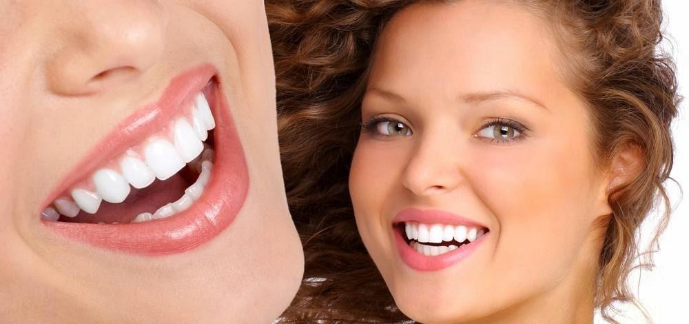 Những lợi ích khi bọc răng sứ mà bạn nên biết