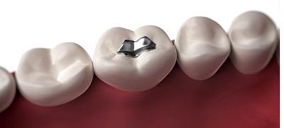 Những lưu ý khi trám răng bằng vật liệu Amalgam
