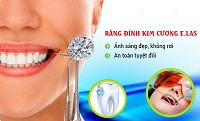 Những thắc mắc thường gặp về răng đính đá
