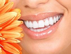 Những trường hợp không nên tẩy trắng răng