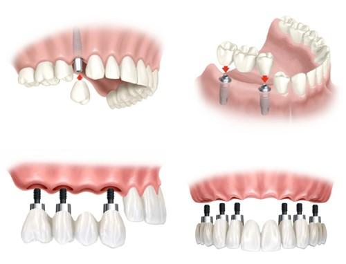 Những ưu điểm của phương pháp cấy ghép Implant