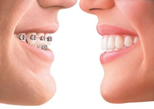 Niềng răng cho người lớn, phương pháp thẩm mỹ răng hô