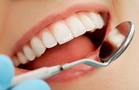 Niềng răng thưa – giải pháp cho răng thưa bẩm sinh và mới phát sinh