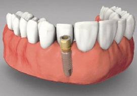 Phân biệt giữa cấy ghép răng implant và trồng răng sứ