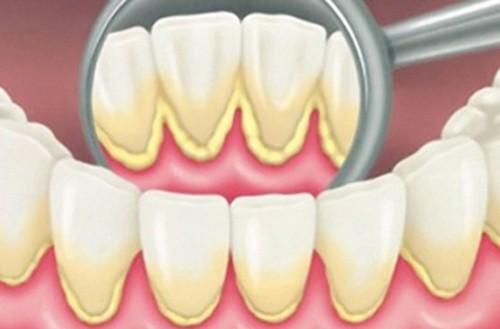 Phân loại vôi răng, quy trình cạo và đánh bóng vôi răng