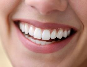 Phân tích hiện tượng viền nướu bị đen sau khi bọc răng sứ