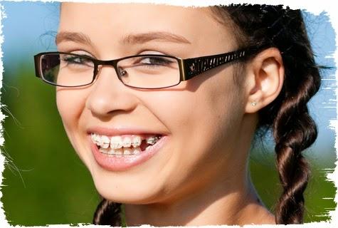 Phương pháp niềng răng không mắc cài Invisalign cho nụ cười tự tin