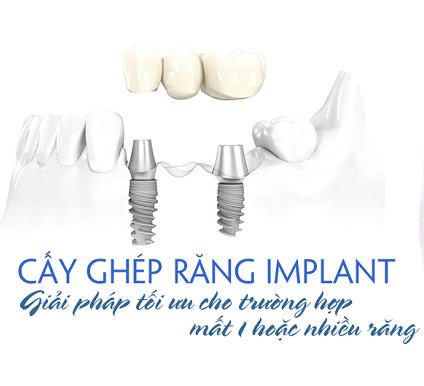 Quy trình và cách chăm sóc răng sau khi cắm ghép Implant