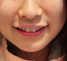 Răng nanh mọc lệch nên nhổ bỏ hay chỉnh nha?