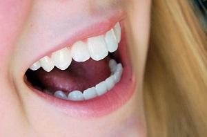 Răng sứ Cercon HT sự lựa chọn hàng đầu trong bọc răng sứ