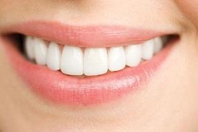 Sau nhổ răng bao lâu thì nên trồng lại răng