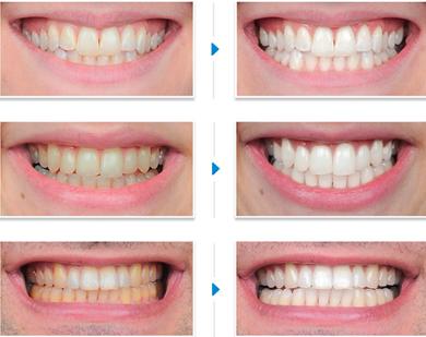 Sự bền đẹp của hàm răng được tẩy trắng từ phương pháp hiện đại