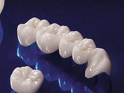 Sự khác biệt của răng sứ không kim loại Cercon