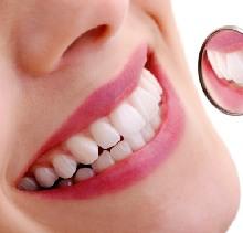Tại sao bọc sứ răng thưa là sự lựa chọn hoàn hảo?
