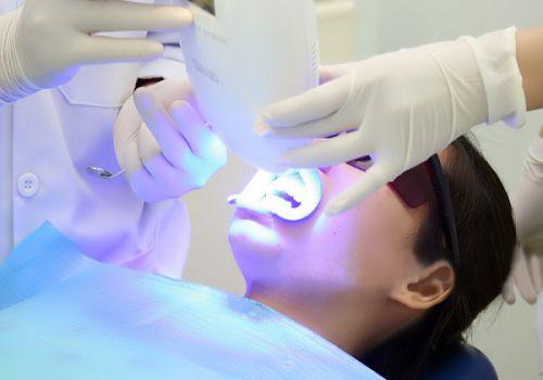 Tẩy trắng răng Uy Tín - Ưu Đãi Tháng 8 - Giảm 25% đến 50%