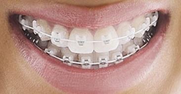 Vì sao nên chọn niềng răng mắc cài sứ
