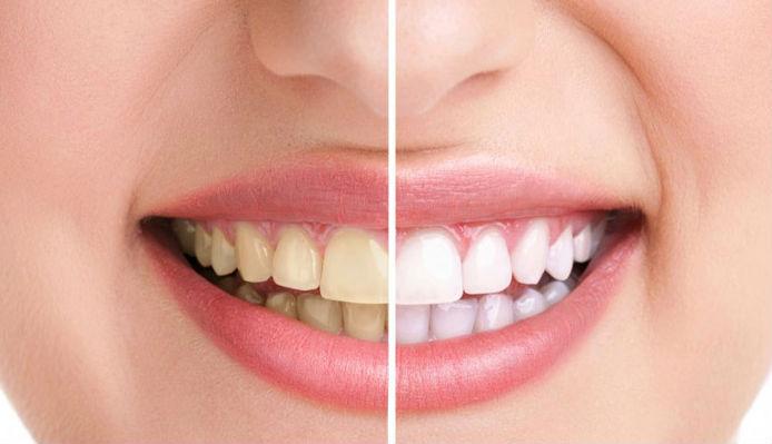 Vôi răng là gì? Tại sao phải cạo vôi răng