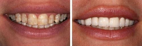 Điều trị răng nhiễm fluor thế nào? - Có thể tẩy trắng được không?