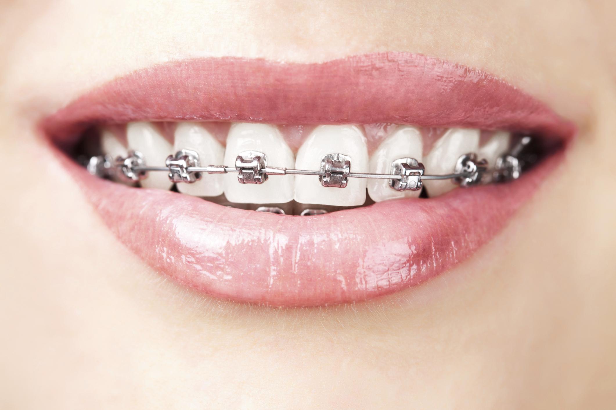 3 yếu tố phải đảm bảo khi niềng răng