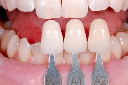 Bọc răng sứ có tốt không và ảnh hưởng đến ăn nhai như thế nào?
