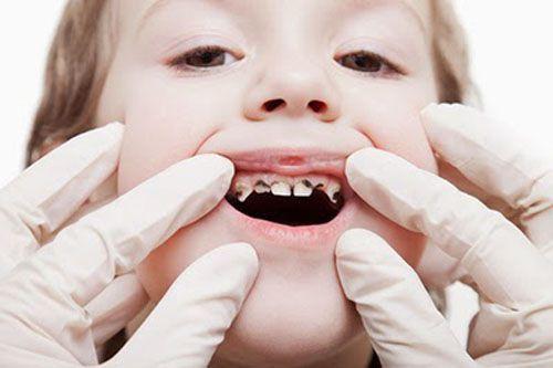 Các bệnh về răng miệng phổ biến hiện nay