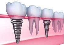 Chi phí cấy ghép Implant tại sao lại cao