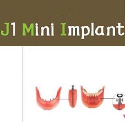 Công nghệ Mini Implant hiện đại có khả năng thay thế implant truyền thống