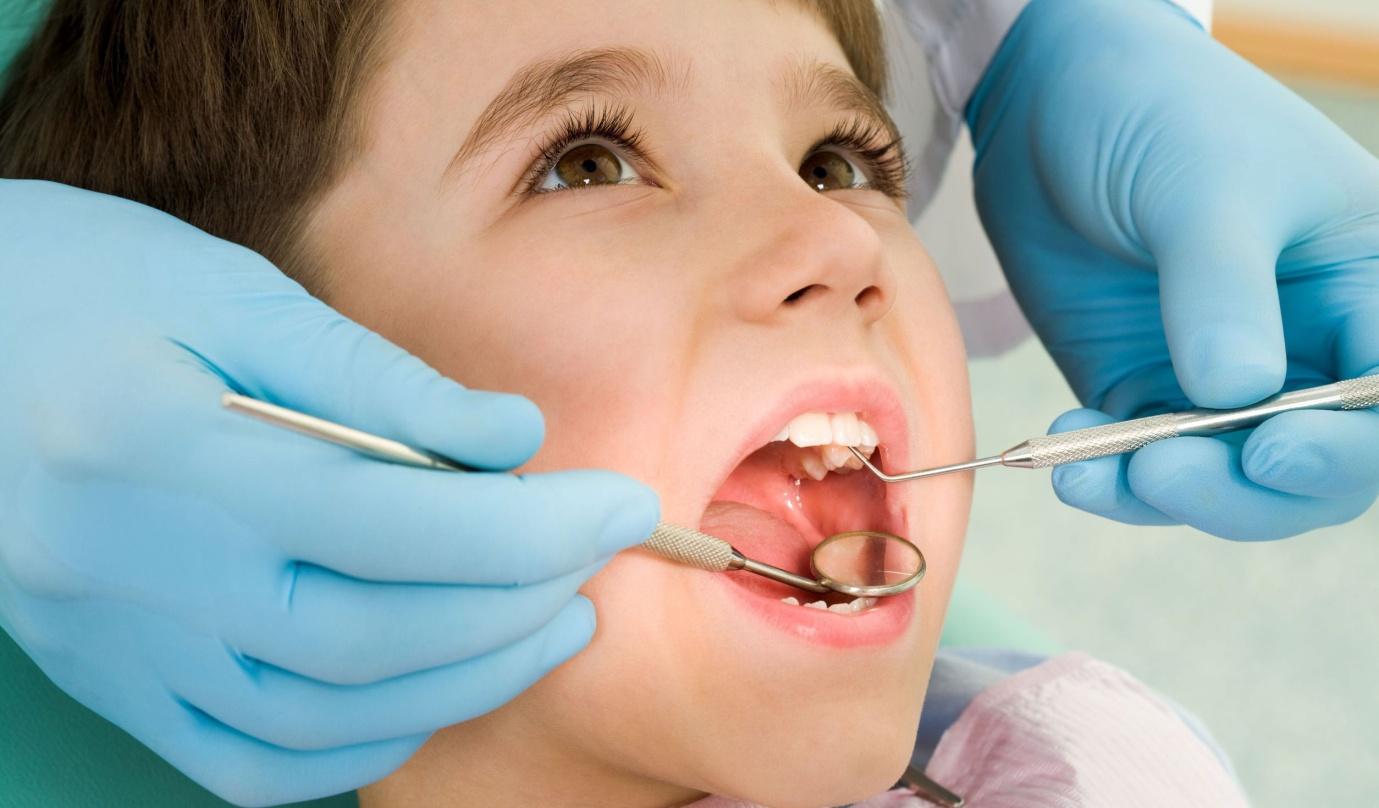 Độ tuổi thích hợp để trẻ niềng răng?