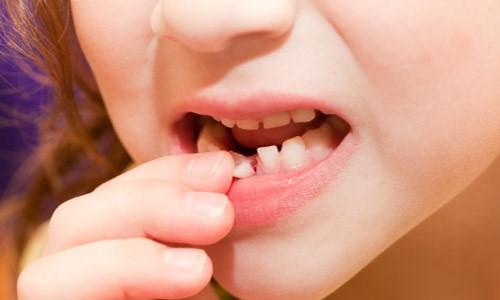 Làm gì khi chẳng may bị chấn thương răng