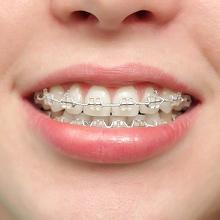 Nhổ răng khi niềng răng có cần thiết không?