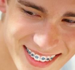 Những điều nên biết trước khi niềng răng