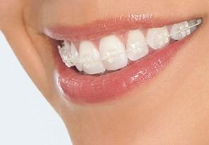Niềng răng, giải pháp thẩm mỹ răng hiệu quả