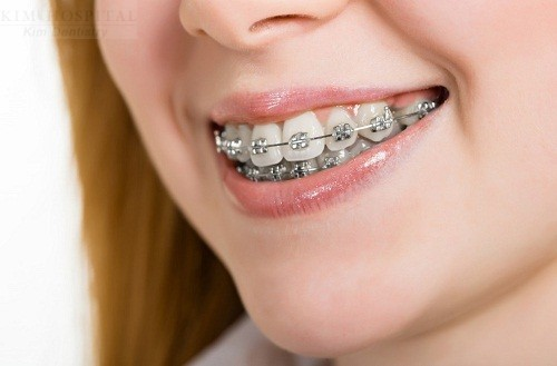 Niềng răng có ảnh hưởng gì tới sinh hoạt và sức khỏe hay không?