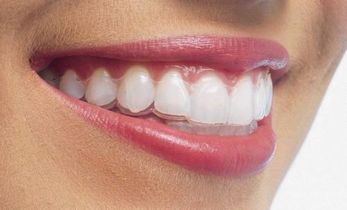 Niềng răng hiệu quả mà không cần nhổ răng